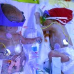 World Prematurity Awareness Day 2015