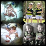 Happy 3rd Birthday Brady and Brenden – TTTS Survivors